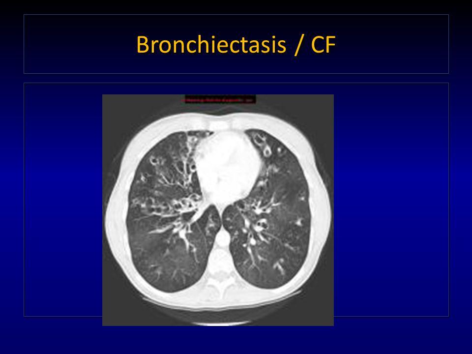 Bronchiectasis / CF
