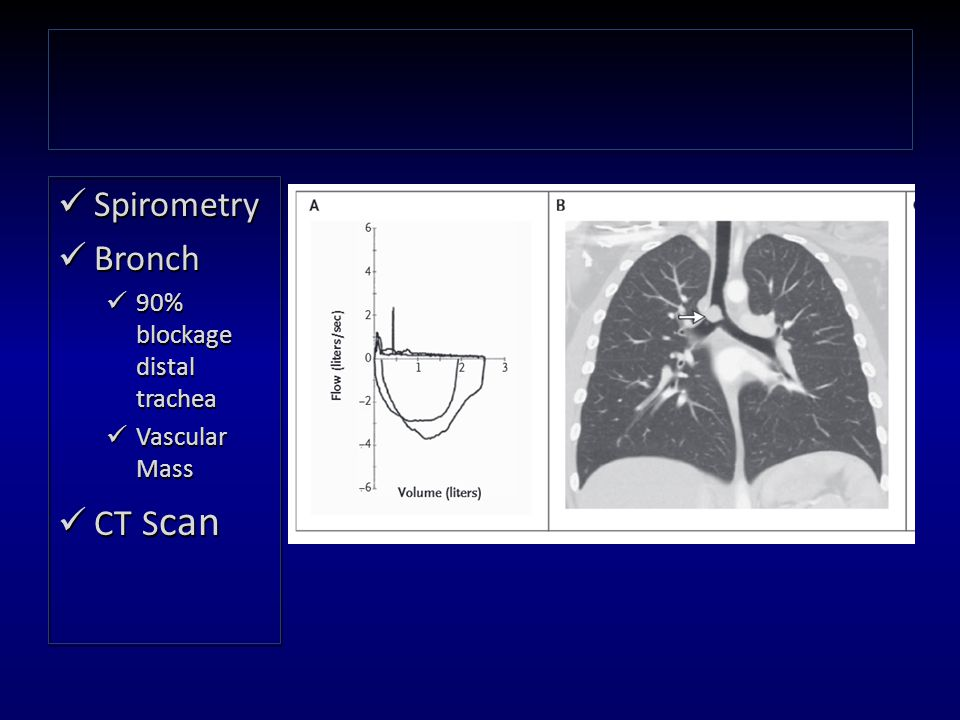 Spirometry Bronch 90% blockage distal trachea Vascular Mass CT S can Spirometry Bronch 90% blockage distal trachea Vascular Mass CT S can