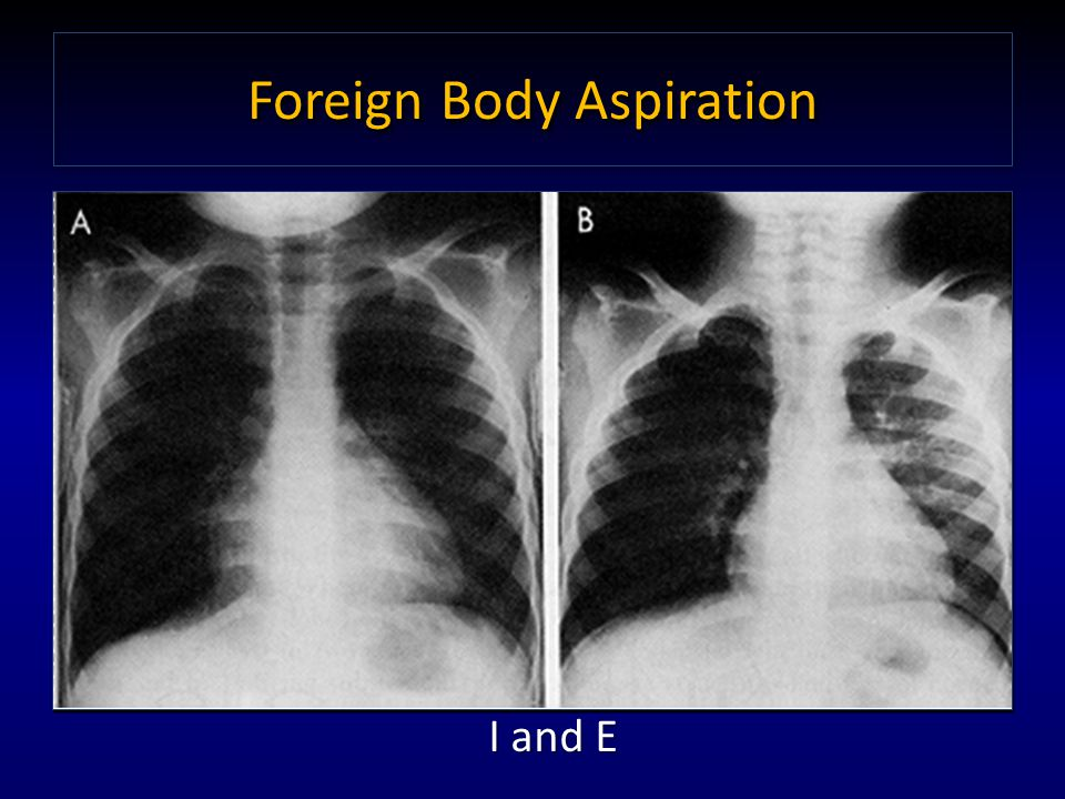 Foreign Body Aspiration I and E