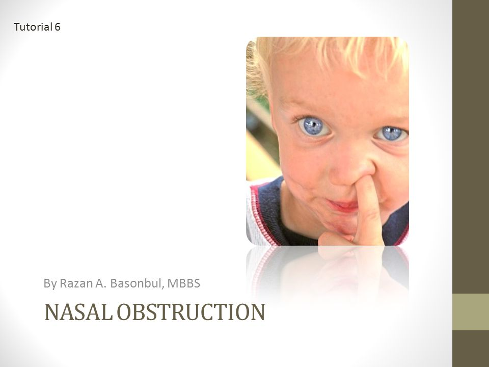 NASAL OBSTRUCTION By Razan A. Basonbul, MBBS Tutorial 6