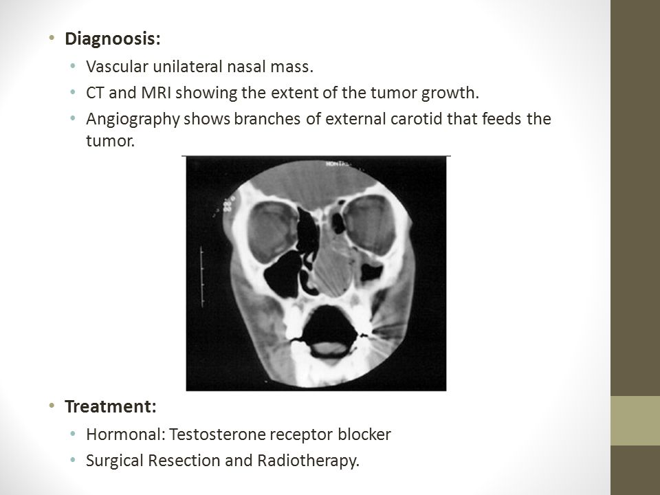 Diagnoosis: Vascular unilateral nasal mass.CT and MRI showing the extent of the tumor growth.