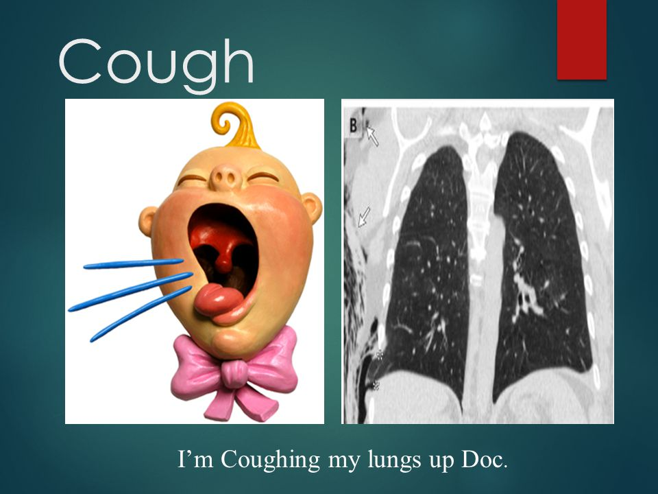 Beware Cough triggered by: change in temperature scent, sprays, aerosols and exercise indicate Increased cough reflex sensitivity and Not just seen in Asthma.