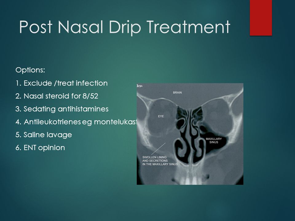 Post Nasal Drip Treatment Options: 1. Exclude /treat infection 2.