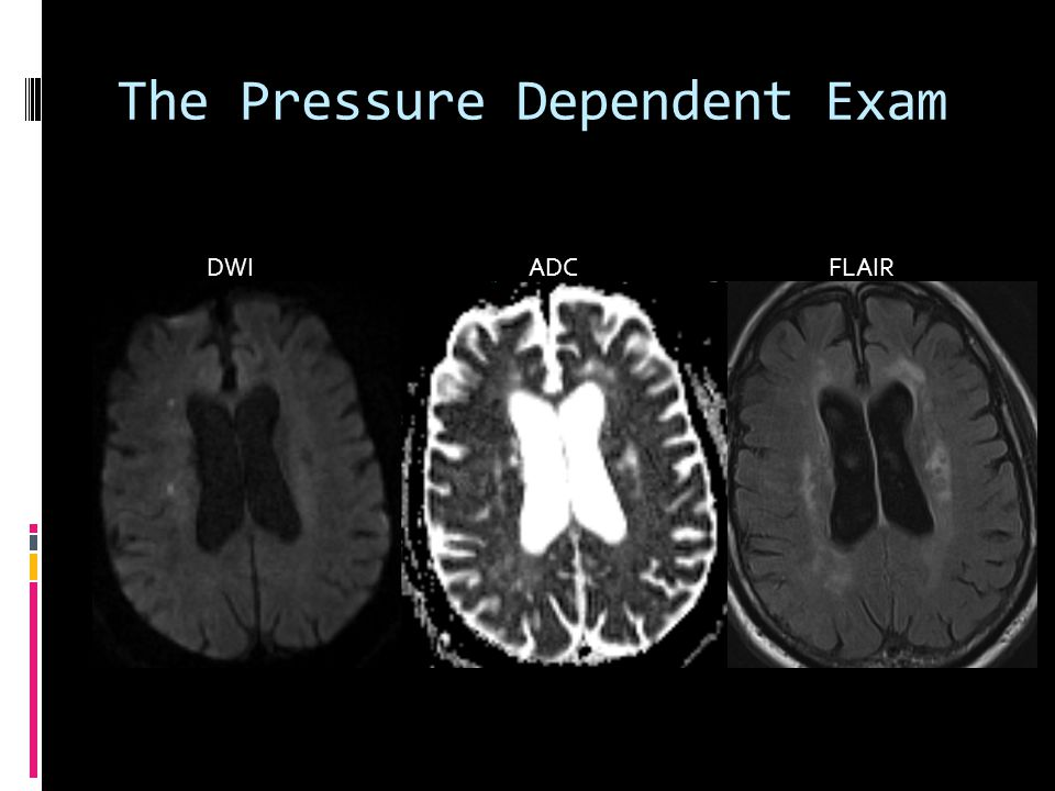 The Pressure Dependent Exam DWI ADC FLAIR