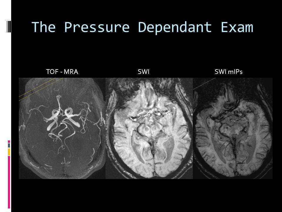 The Pressure Dependant Exam TOF - MRA SWI SWI mIPs