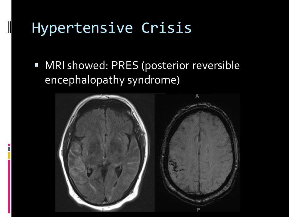 Hypertensive Crisis  MRI showed: PRES (posterior reversible encephalopathy syndrome)