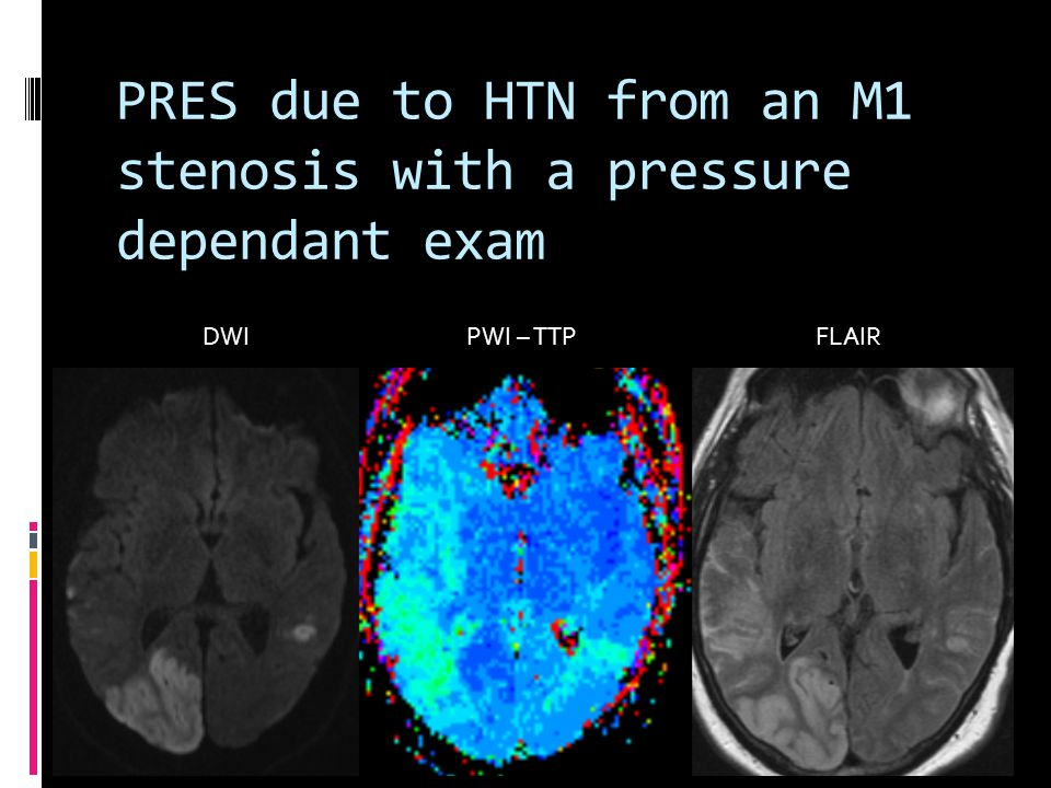 PRES due to HTN from an M1 stenosis with a pressure dependant exam DWI PWI – TTP FLAIR