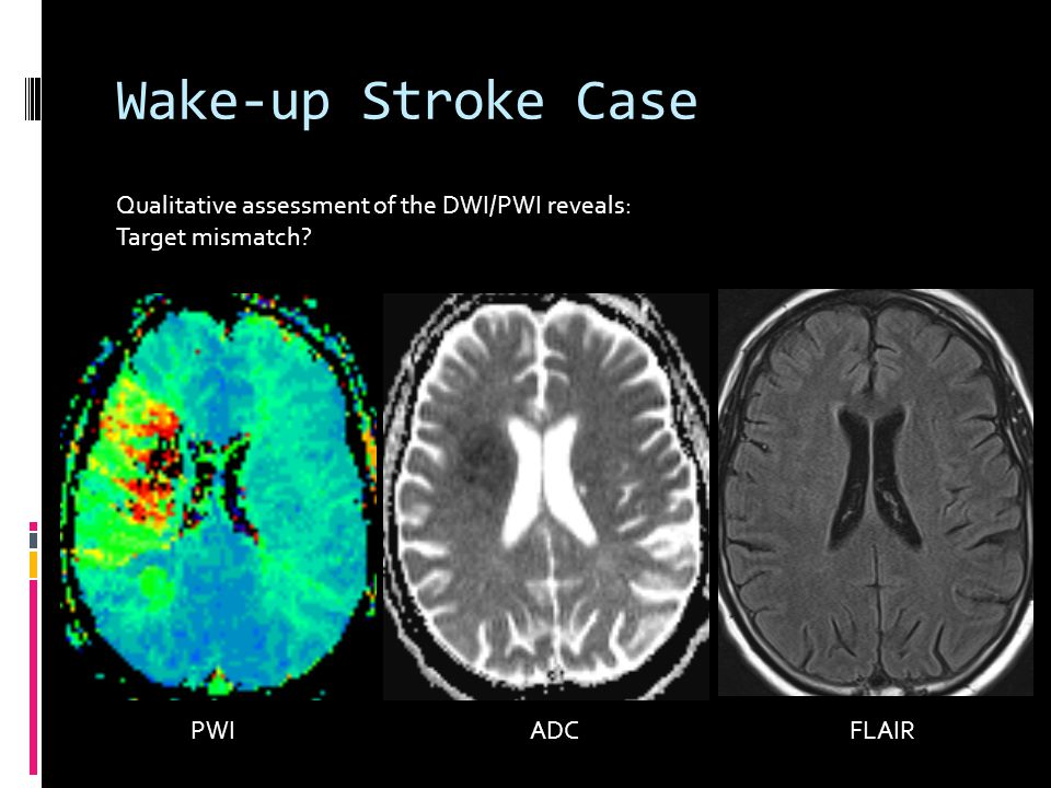 Wake-up Stroke Case PWI ADC FLAIR Qualitative assessment of the DWI/PWI reveals: Target mismatch?