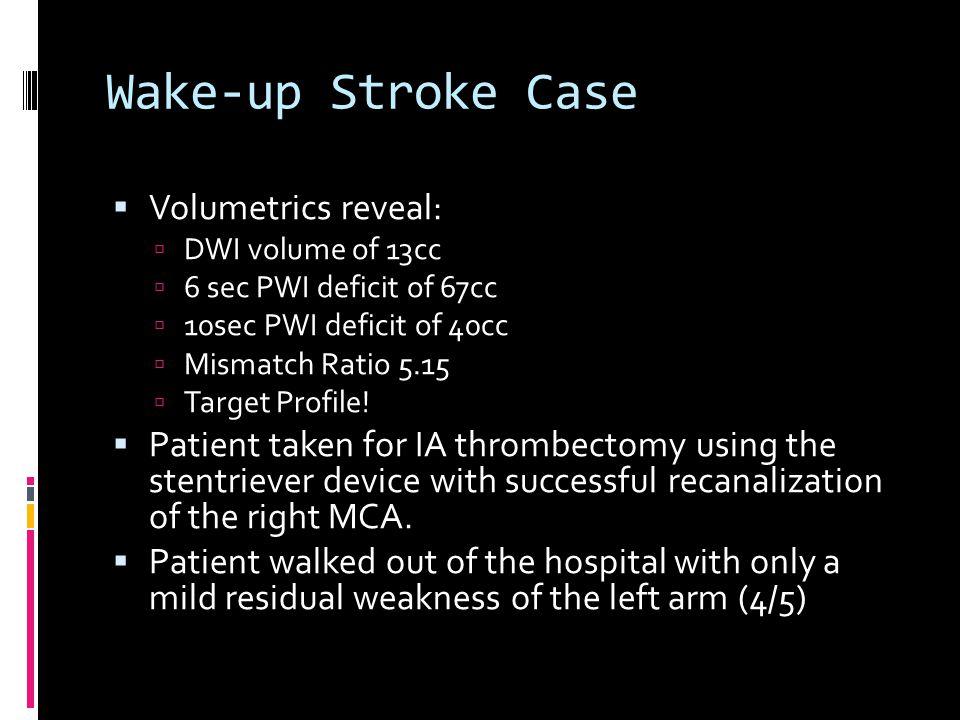 Wake-up Stroke Case  Volumetrics reveal:  DWI volume of 13cc  6 sec PWI deficit of 67cc  10sec PWI deficit of 40cc  Mismatch Ratio 5.15  Target Profile.