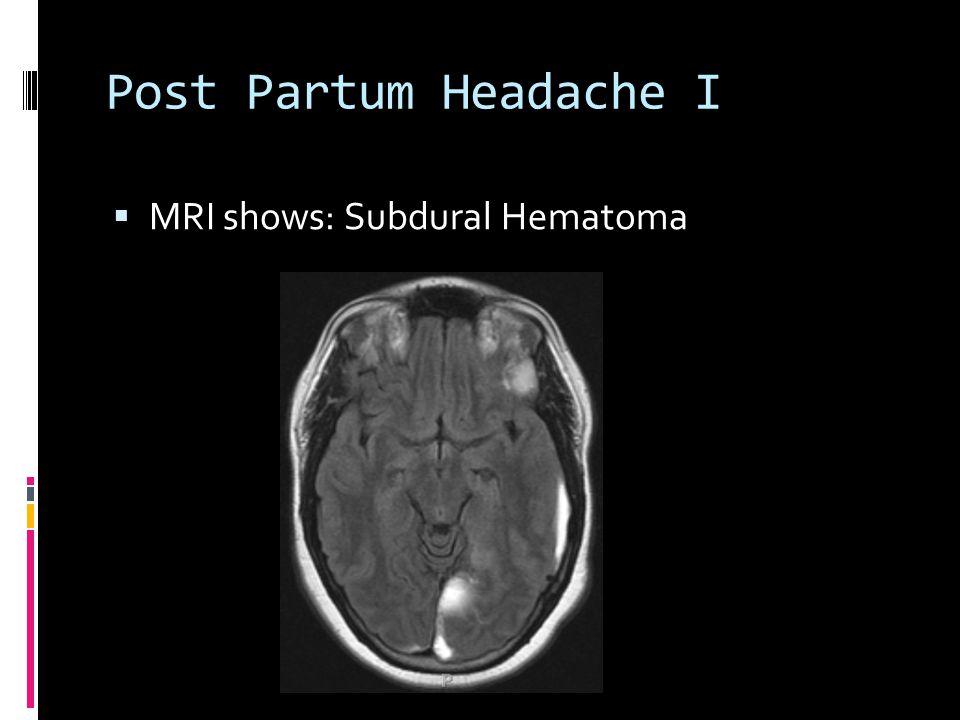 Post Partum Headache I  MRI shows: Subdural Hematoma