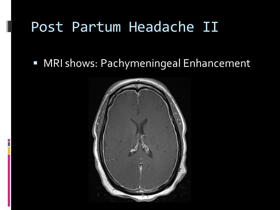 Post Partum Headache II  MRI shows: Pachymeningeal Enhancement
