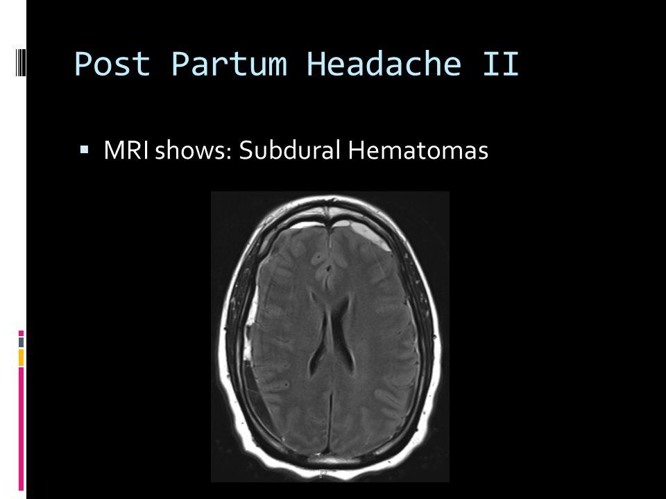 Post Partum Headache II  MRI shows: Subdural Hematomas