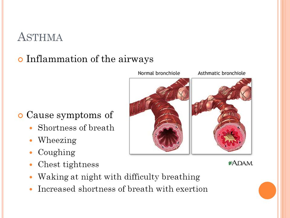 A STHMA Inflammation of the airways Cause symptoms of Shortness of breath Wheezing Coughing Chest tightness Waking at night with difficulty breathing Increased shortness of breath with exertion