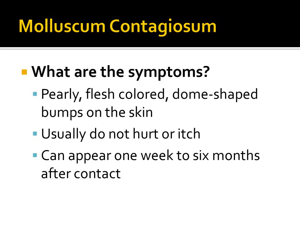 What are the symptoms?  Pearly, flesh colored, dome-shaped bumps on the skin  Usually do not hurt or itch  Can appear one week to six months afte