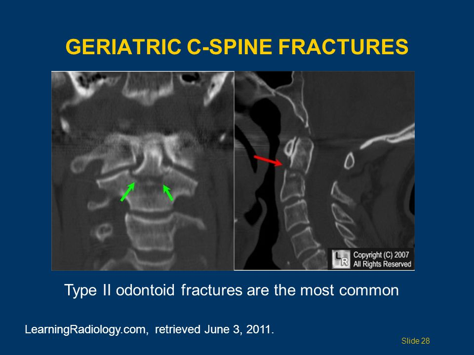 ODONTOID FRACTURES Insert image/ diagram of 3 types of odontoid fractures.