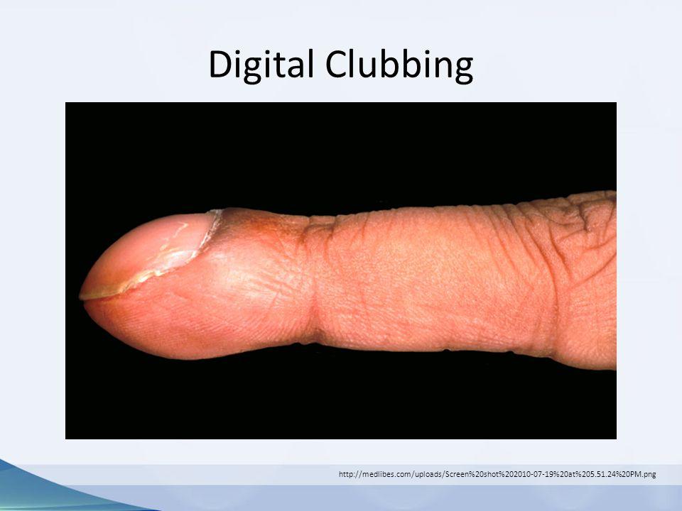 Digital Clubbing http://medlibes.com/uploads/Screen%20shot%202010-07-19%20at%205.51.24%20PM.png