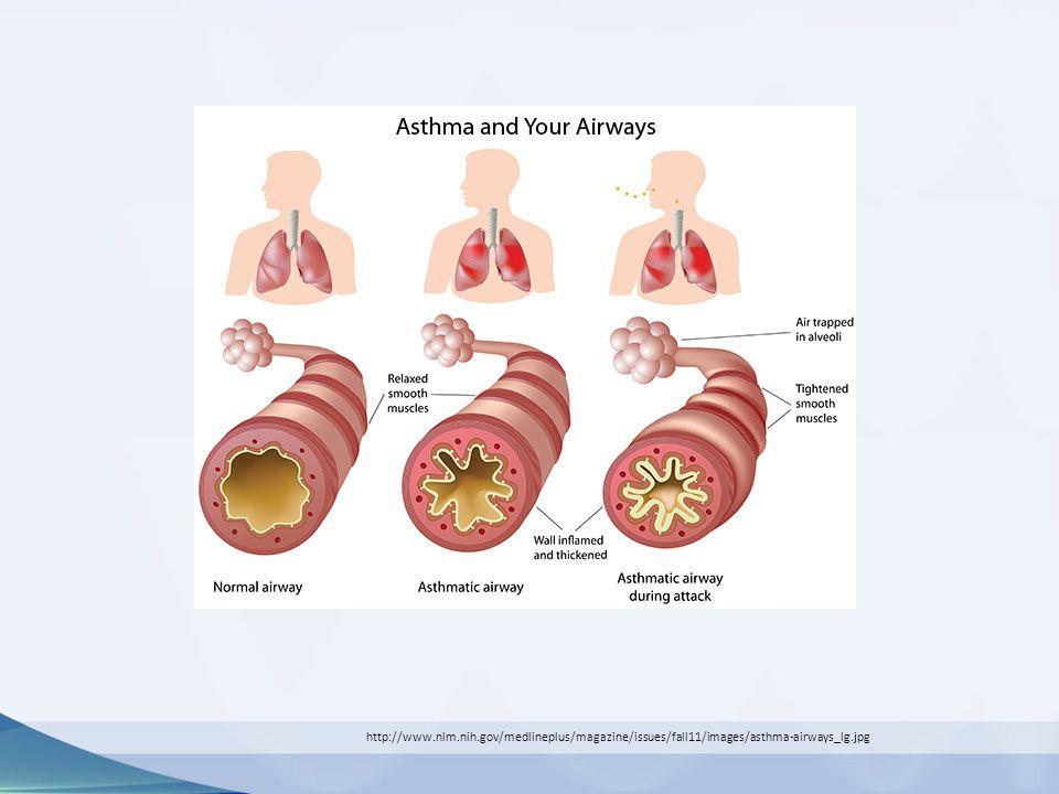 http://www.nlm.nih.gov/medlineplus/magazine/issues/fall11/images/asthma-airways_lg.jpg