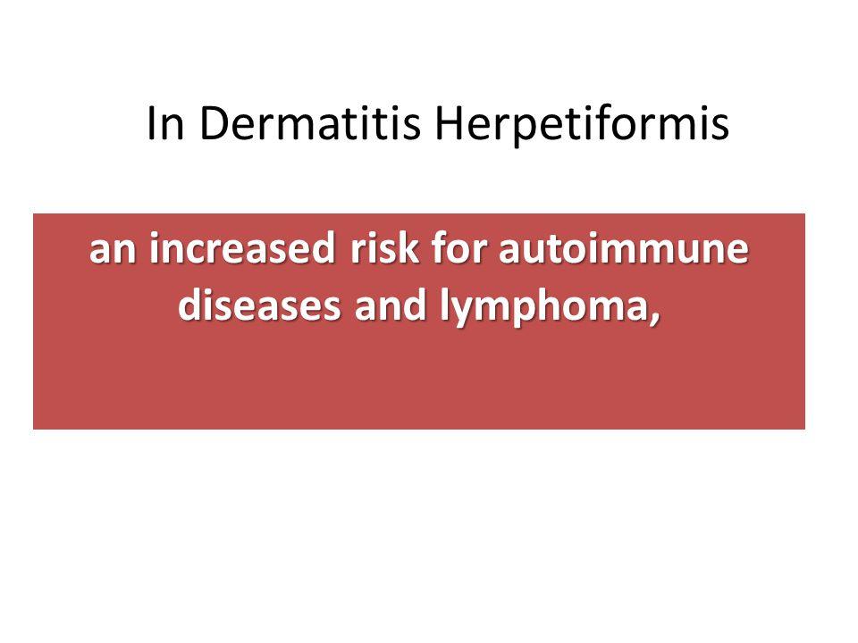 In Dermatitis Herpetiformis an increased risk for autoimmune diseases and lymphoma,