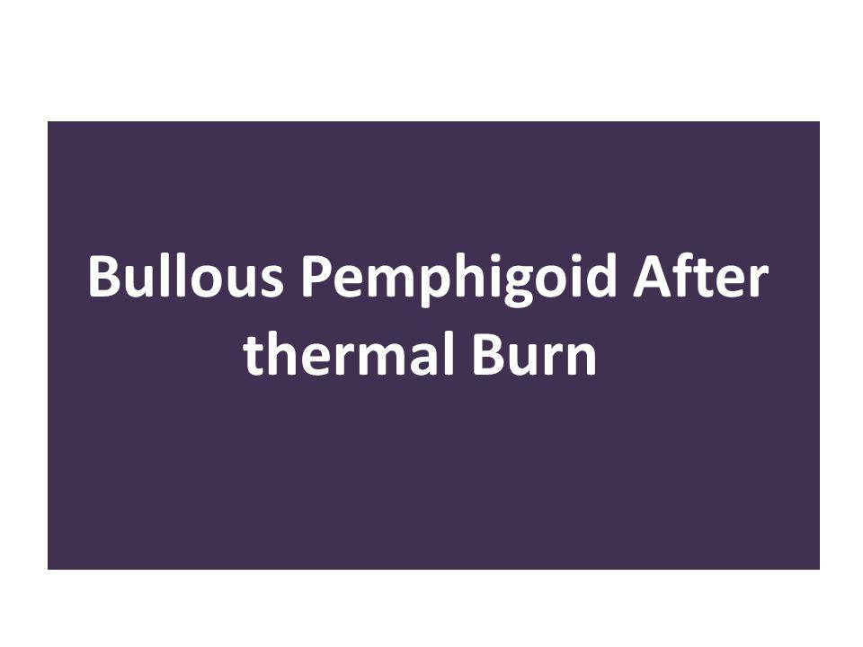 Bullous Pemphigoid After thermal Burn n