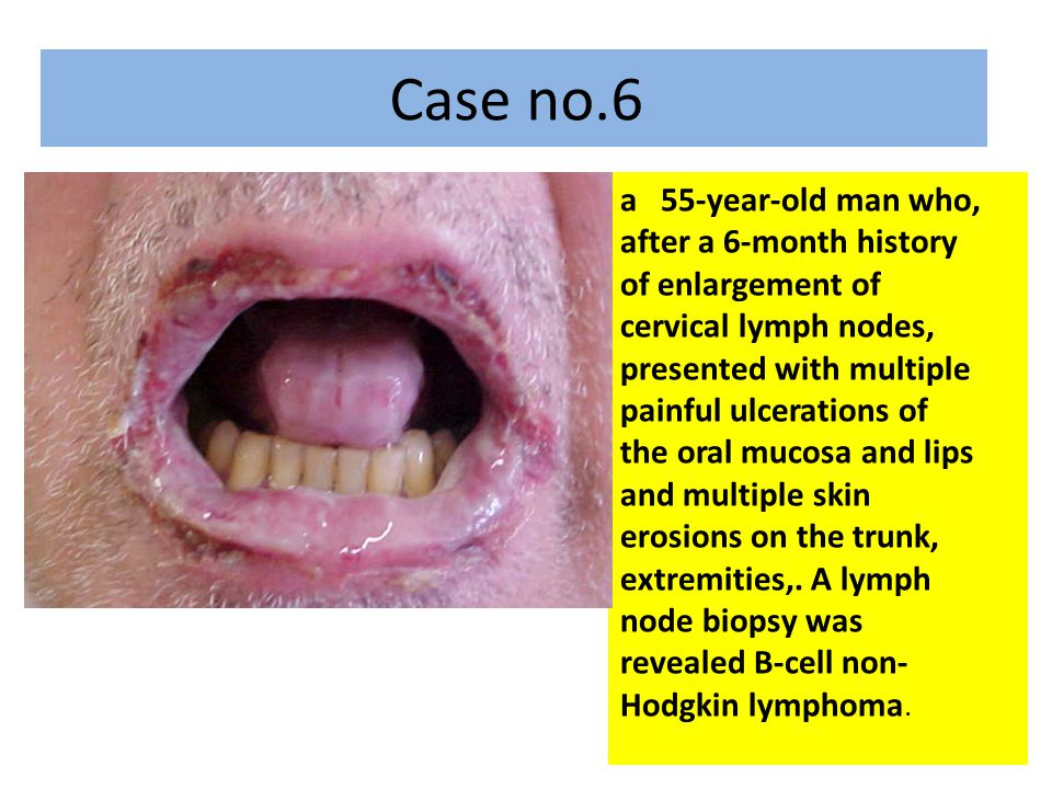 a 55-year-old man who, after a 6-month history of enlargement of cervical lymph nodes, presented with multiple painful ulcerations of the oral mucosa and lips and multiple skin erosions on the trunk, extremities,.