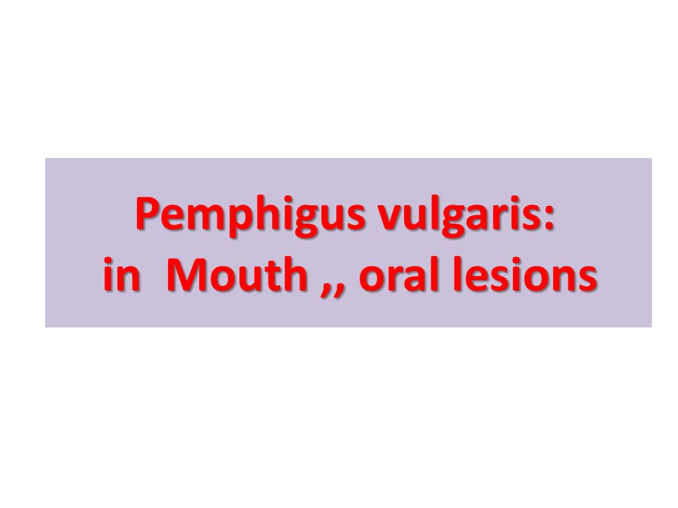 Pemphigus vulgaris: in Mouth,, oral lesions