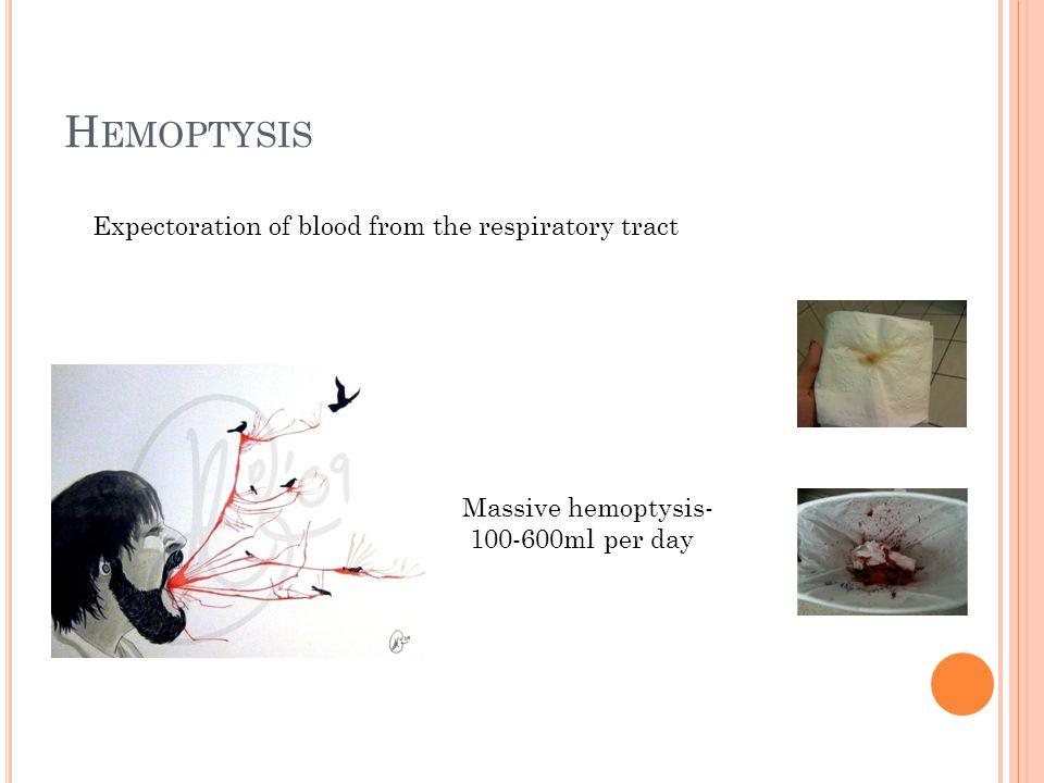 H EMOPTYSIS Expectoration of blood from the respiratory tract Massive hemoptysis- 100-600ml per day