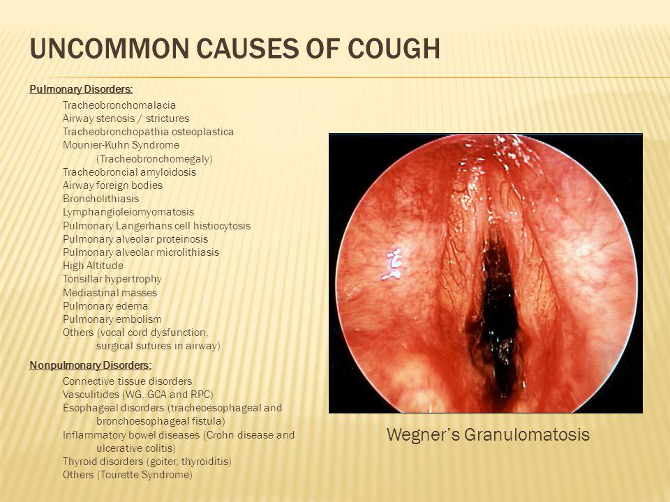 UNCOMMON CAUSES OF COUGH Wegner's Granulomatosis Pulmonary Disorders: Tracheobronchomalacia Airway stenosis / strictures Tracheobronchopathia osteopla