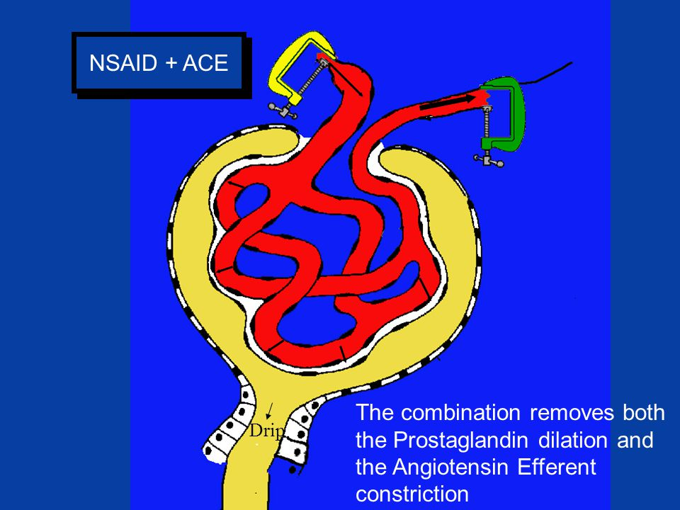NSAID + ACE Drip The combination removes both the Prostaglandin dilation and the Angiotensin Efferent constriction