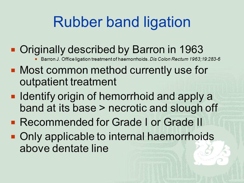 Rubber band ligation  Originally described by Barron in 1963  Barron J. Office ligation treatment of haemorrhoids. Dis Colon Rectum 1963;19:283-6 