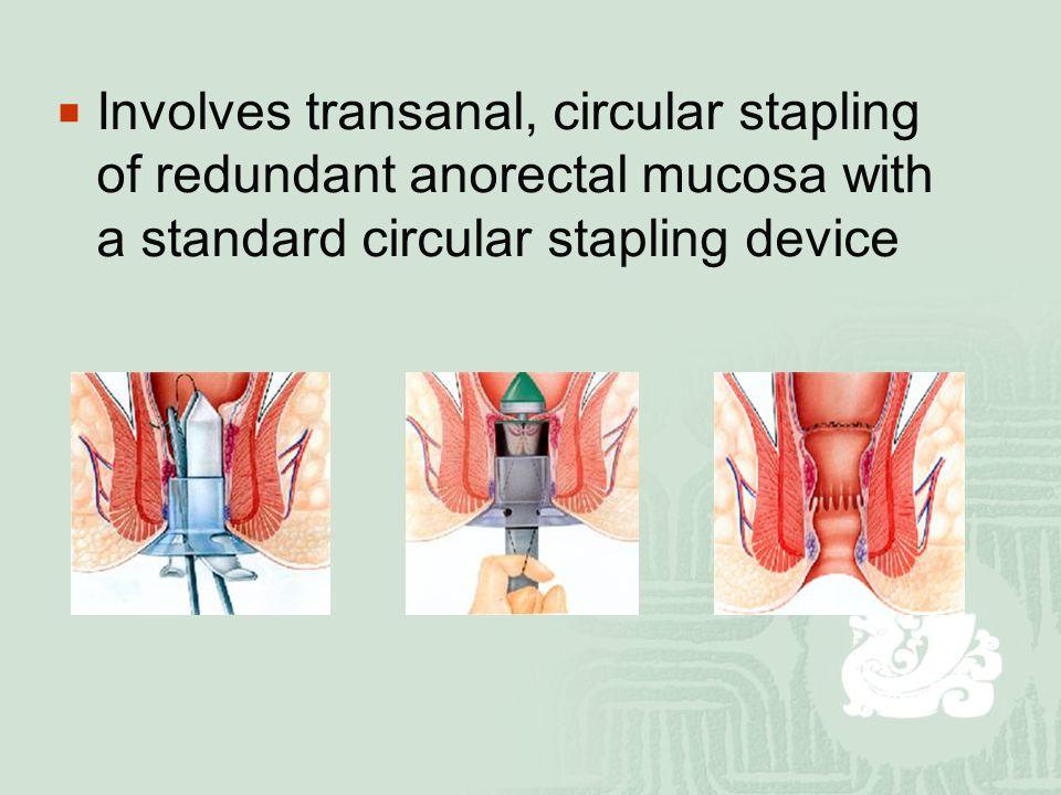  Involves transanal, circular stapling of redundant anorectal mucosa with a standard circular stapling device