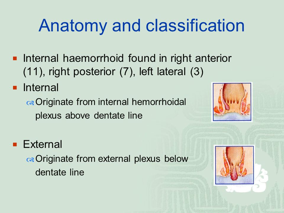 Anatomy and classification  Internal haemorrhoid found in right anterior (11), right posterior (7), left lateral (3)  Internal  Originate from inte