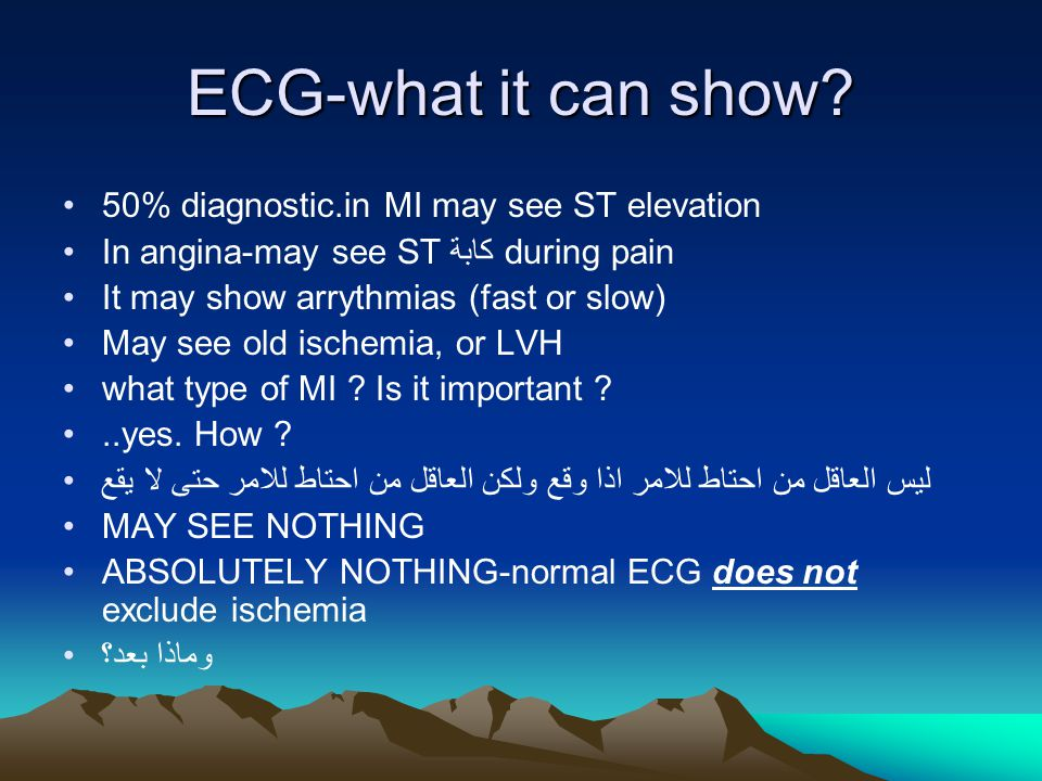 ECG-what it can show.