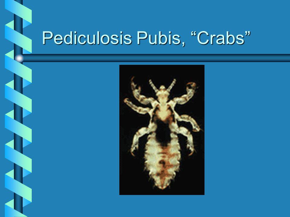 """Pediculosis Pubis, """"Crabs"""""""