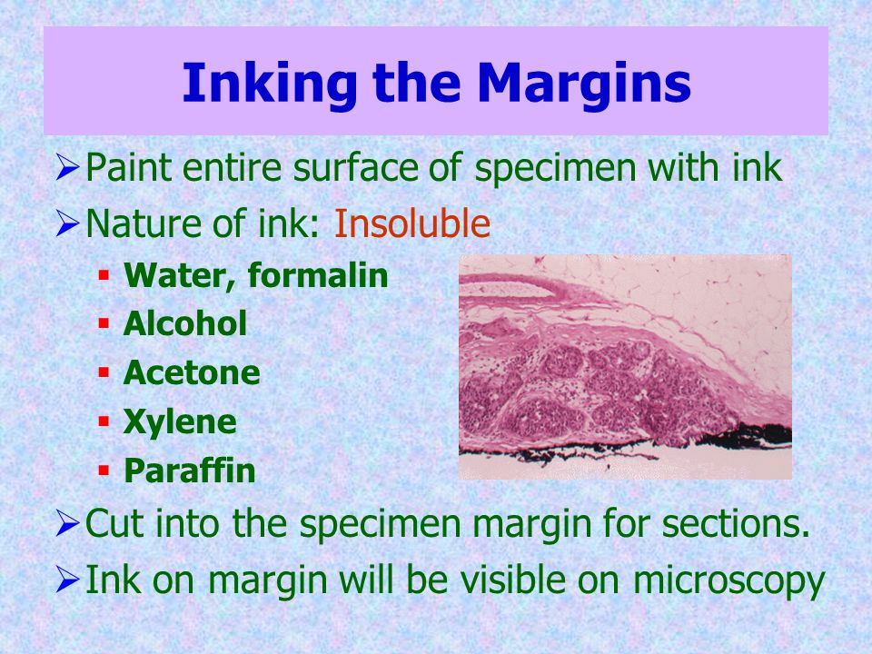 Inking the Margins  Paint entire surface of specimen with ink  Nature of ink: Insoluble  Water, formalin  Alcohol  Acetone  Xylene  Paraffin 