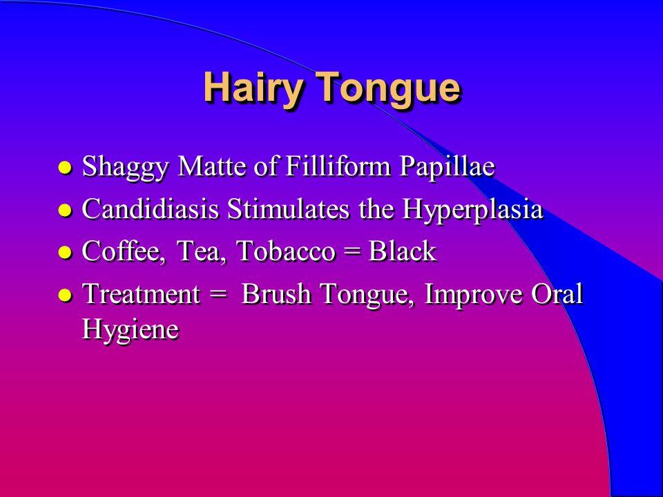 Hairy Tongue l Shaggy Matte of Filliform Papillae l Candidiasis Stimulates the Hyperplasia l Coffee, Tea, Tobacco = Black l Treatment = Brush Tongue,