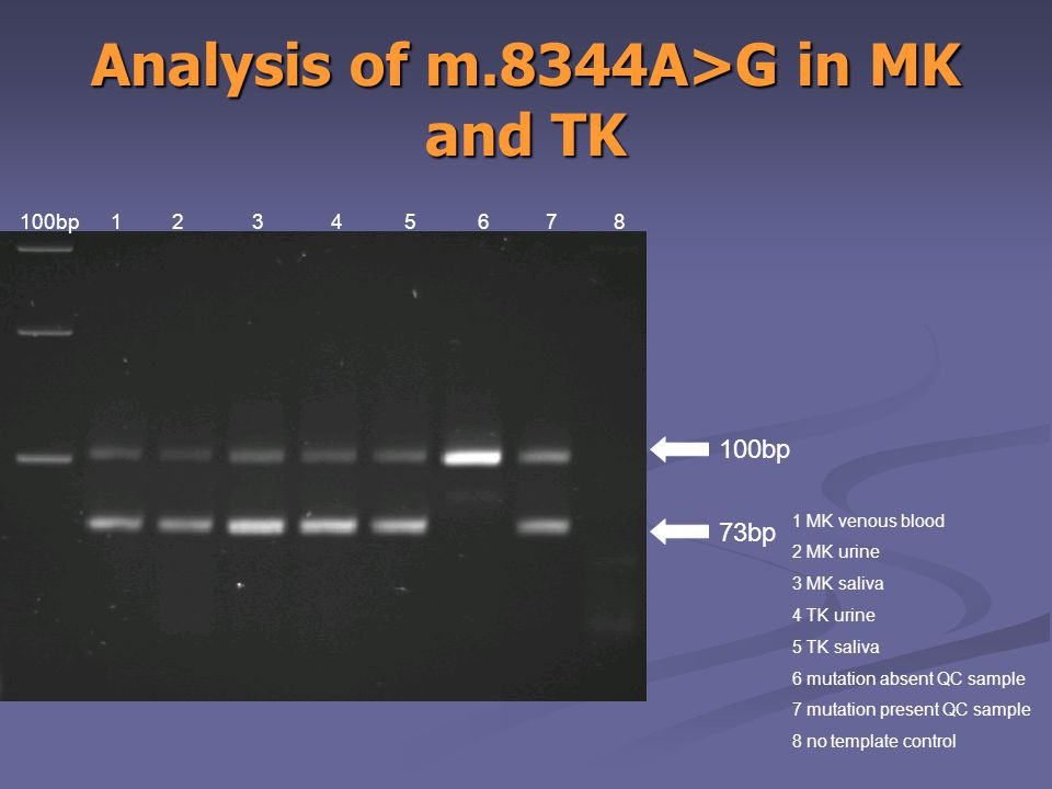 100bp 1 2 3 4 5 6 7 8 1 MK venous blood 2 MK urine 3 MK saliva 4 TK urine 5 TK saliva 6 mutation absent QC sample 7 mutation present QC sample 8 no template control 100bp 73bp Analysis of m.8344A>G in MK and TK