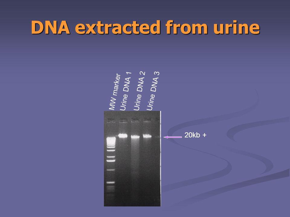DNA extracted from urine MW marker Urine DNA 1 Urine DNA 2 Urine DNA 3 20kb +