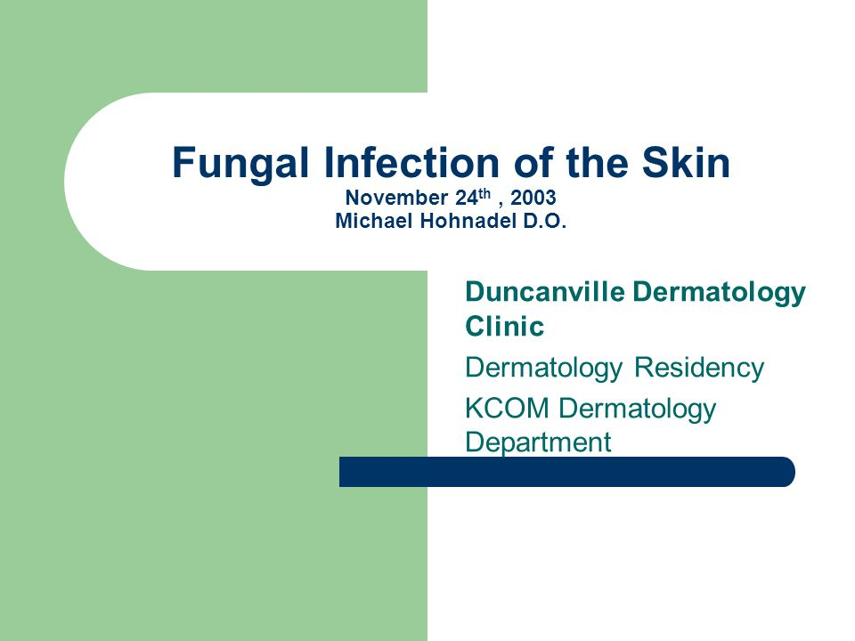 Fungal Infection of the Skin November 24 th, 2003 Michael Hohnadel D.O. Duncanville Dermatology Clinic Dermatology Residency KCOM Dermatology Departme