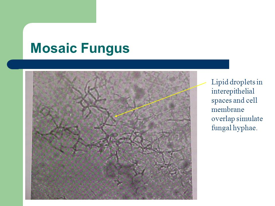Mosaic Fungus Lipid droplets in interepithelial spaces and cell membrane overlap simulate fungal hyphae.