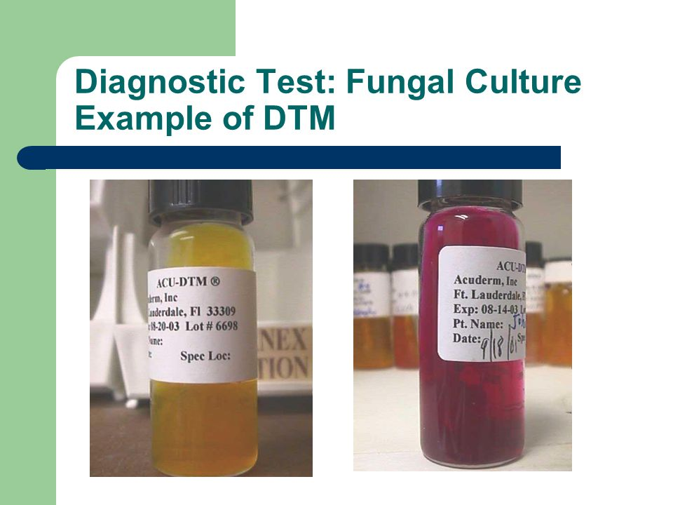 Diagnostic Test: Fungal Culture Example of DTM