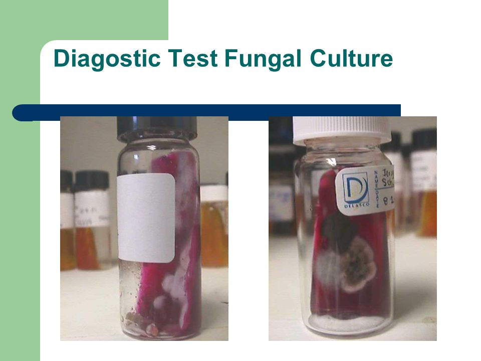 Diagostic Test Fungal Culture