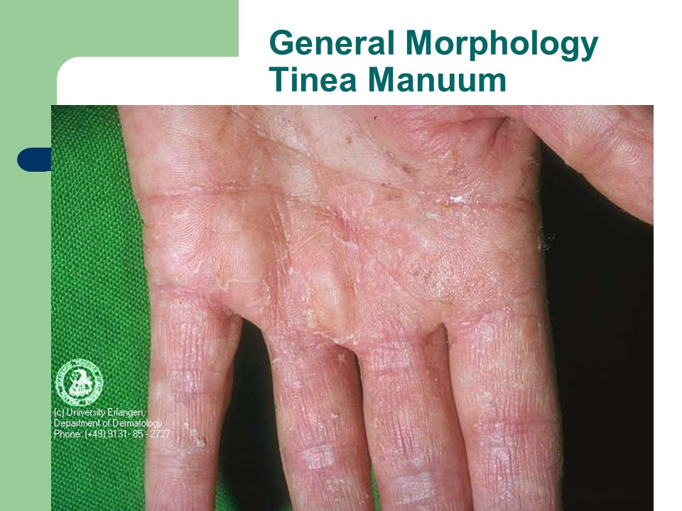General Morphology Tinea Manuum
