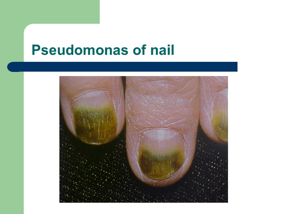Pseudomonas of nail