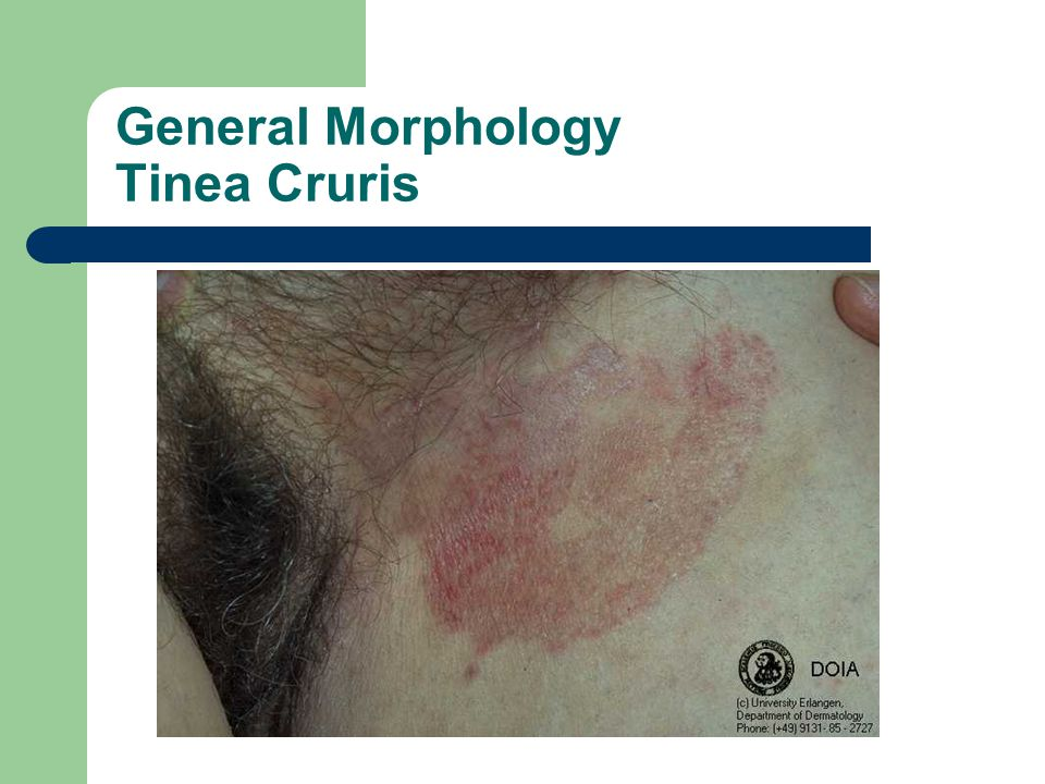General Morphology Tinea Cruris