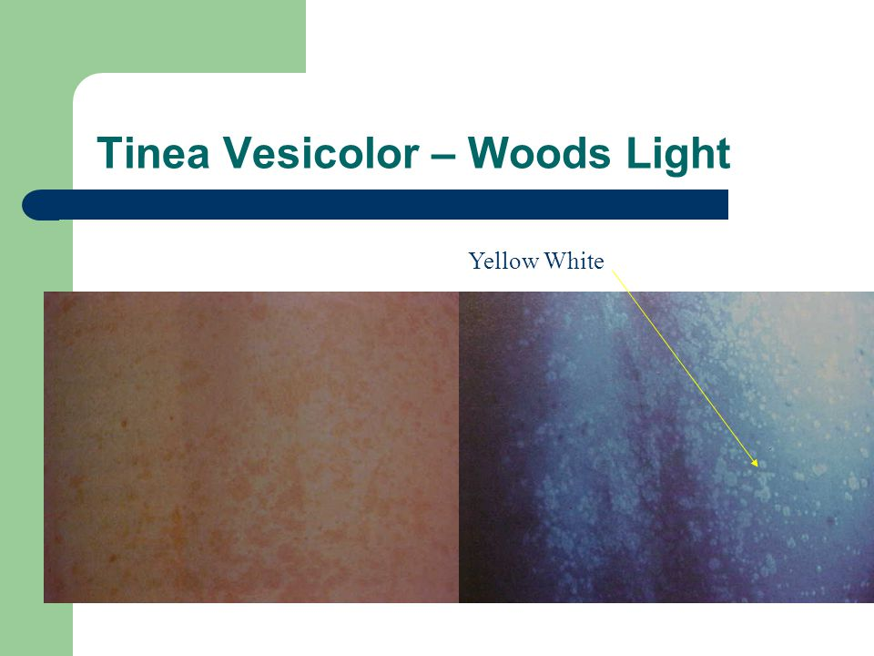 Tinea Vesicolor – Woods Light Yellow White