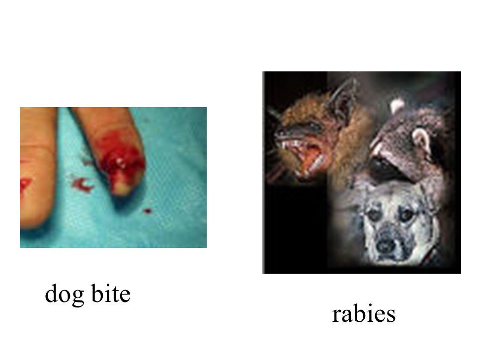 dog bite rabies