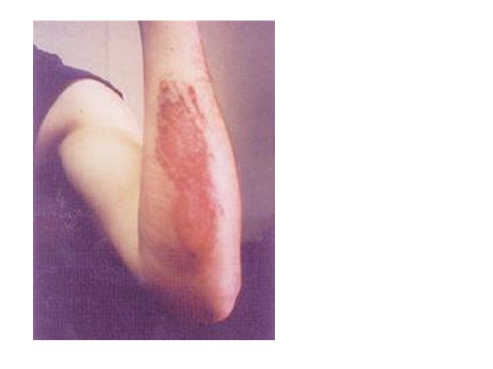 c.keep head tilted - look, listen, and feel again, check for carotid pulse d.