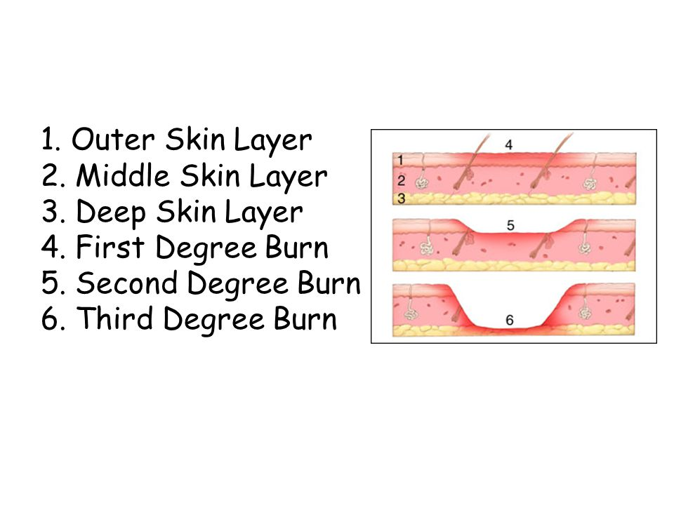 1. Outer Skin Layer 2. Middle Skin Layer 3. Deep Skin Layer 4.