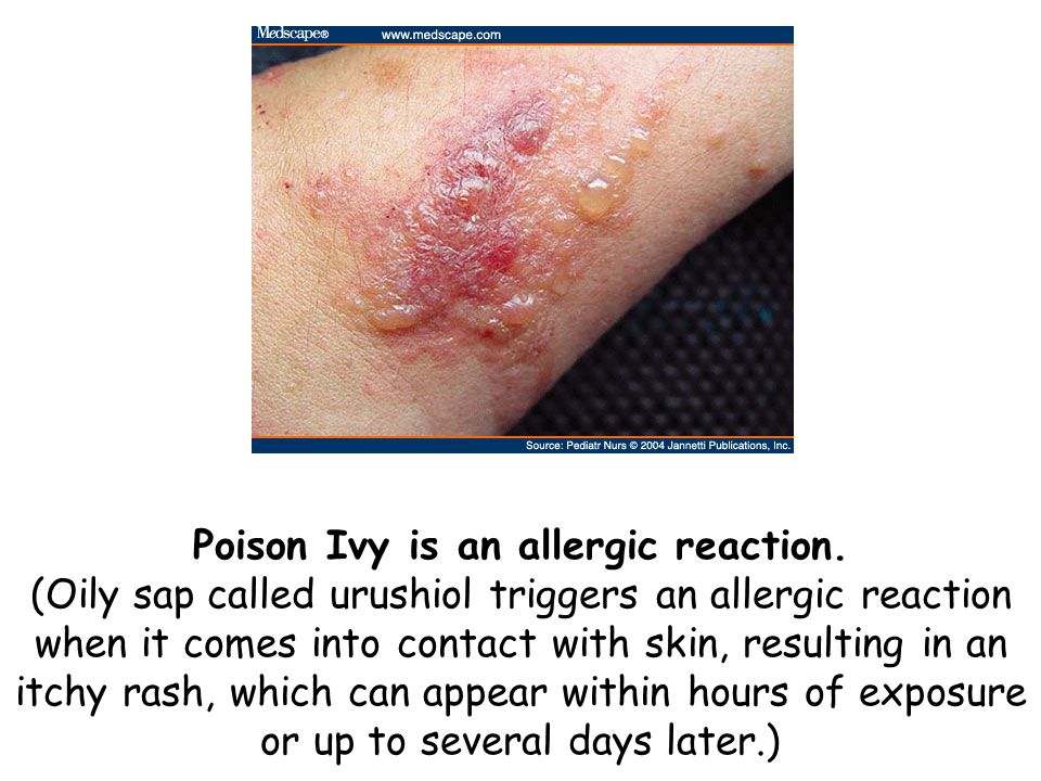 Poison Ivy is an allergic reaction. (Oily sap called urushiol triggers an allergic reaction when it comes into contact with skin, resulting in an itch
