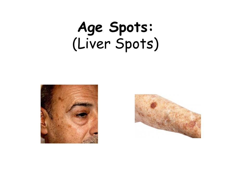 Age Spots: (Liver Spots)